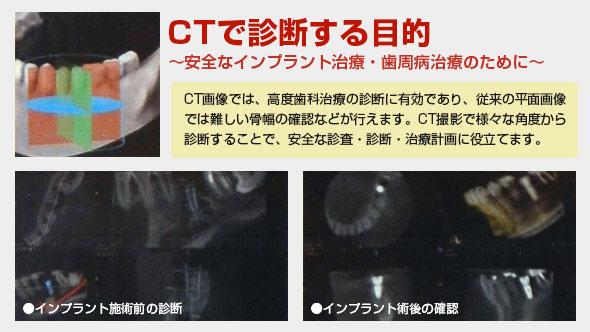 ct-new2